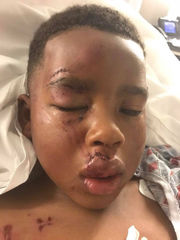5-year-old boy in Kenner attacked by family's recently adopted pet dog