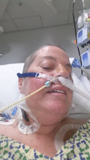 Breathing new life: Beachwood woman gets second chance after lung transplant