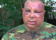 NOPD officers 'took turns, like a wrestling match': report details July 24 beating